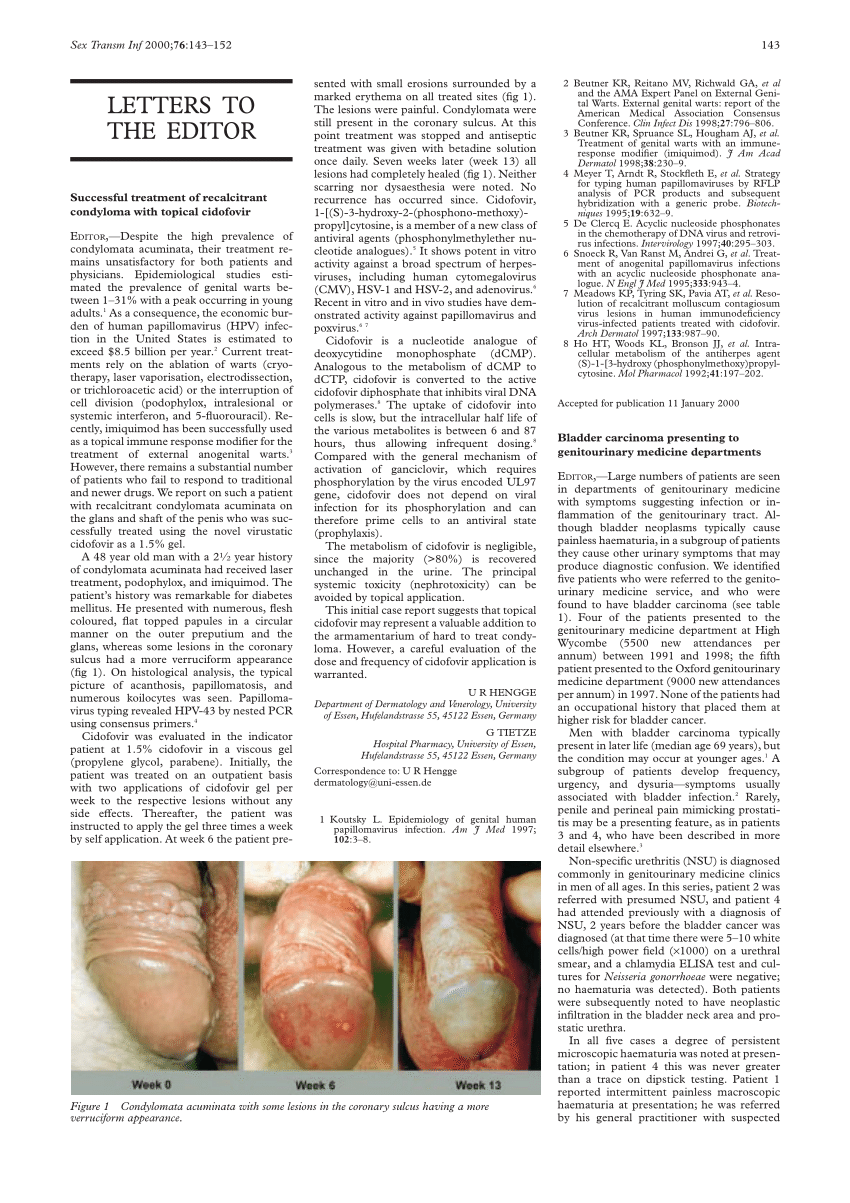papiloma krema zagreb como eliminar papiloma en la boca