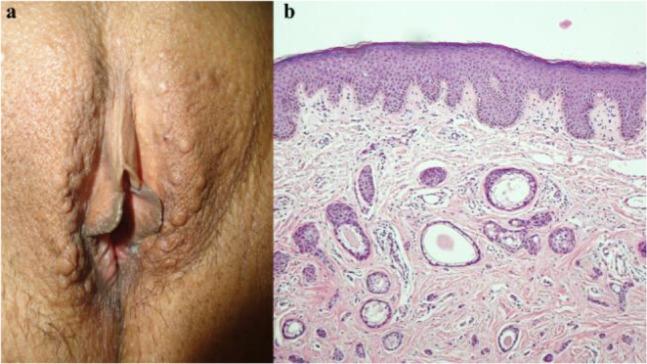 ovarian cancer pcos copii alergii la viermi