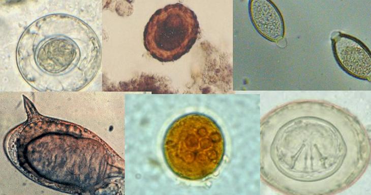 lamblia paraziti vindeca detoxia colonului