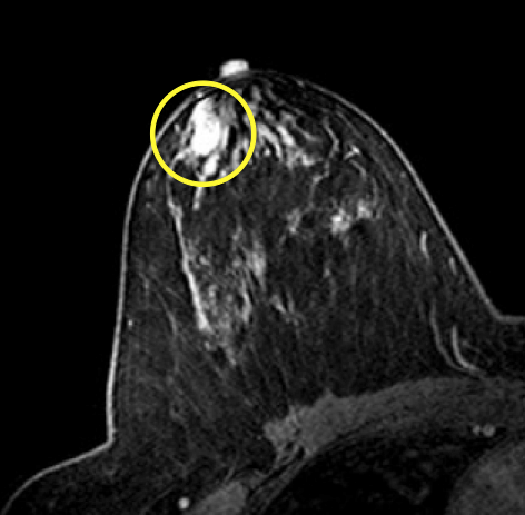 ductal papilloma mammogram