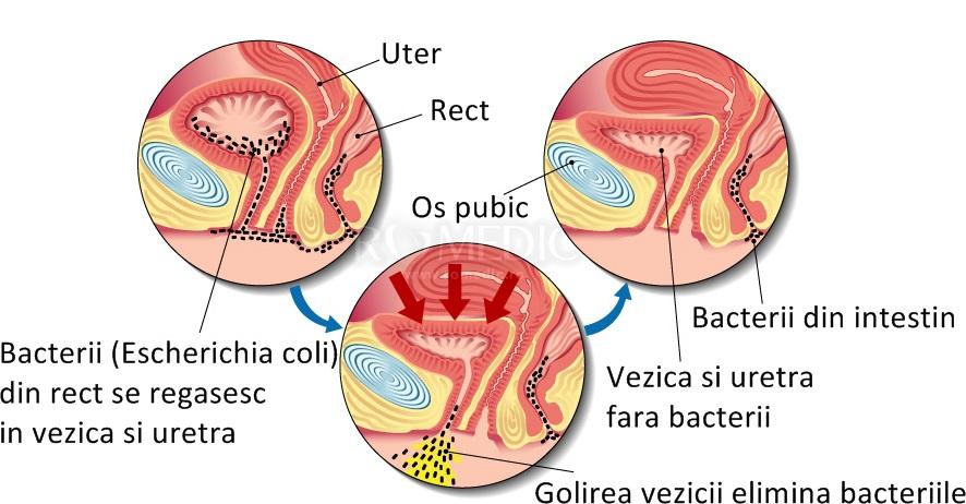 Infecția urinară la femeie