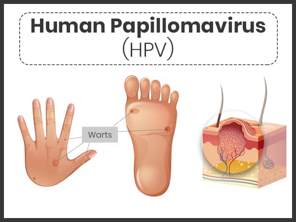 symptoms of papilloma virus
