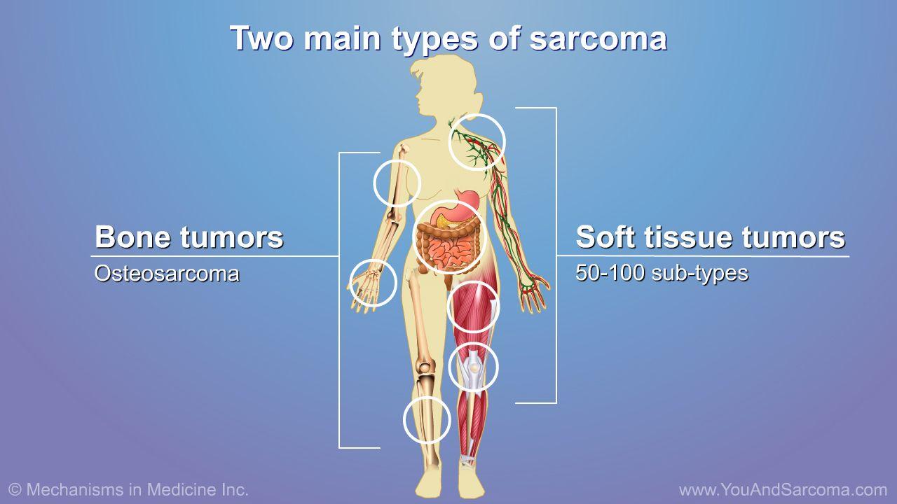 cancer colon homme symptome o que e a oxiurose