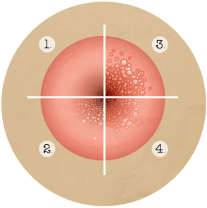 Hpv virus tijdens zwangerschap. HPV: wat is het? hyperkeratosis papillomatosis and acanthosis