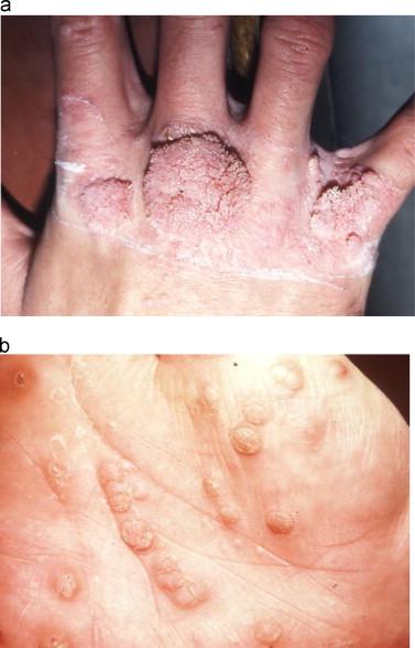 human papilloma virus outbreak vierme trichina