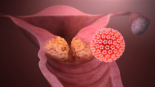 il papilloma virus e trasmissibile tratamentul paraziților uterini