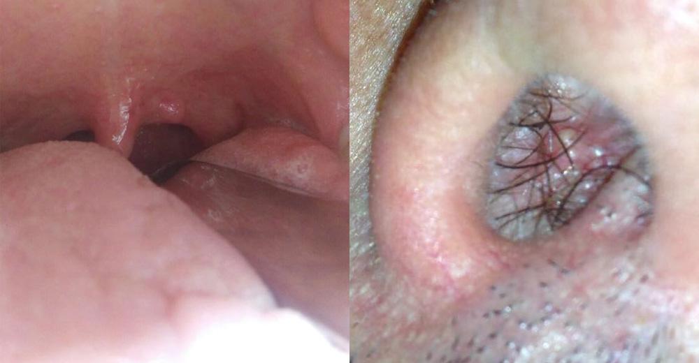 Papilloma virus lesioni