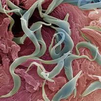 gambar clasifică nemathelminthes condilom în esofag