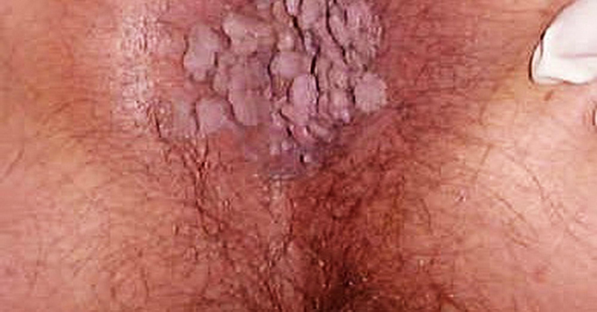 papilloma virus uomo antibiotico