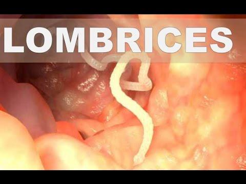 parasitos oxiuros medicamentos