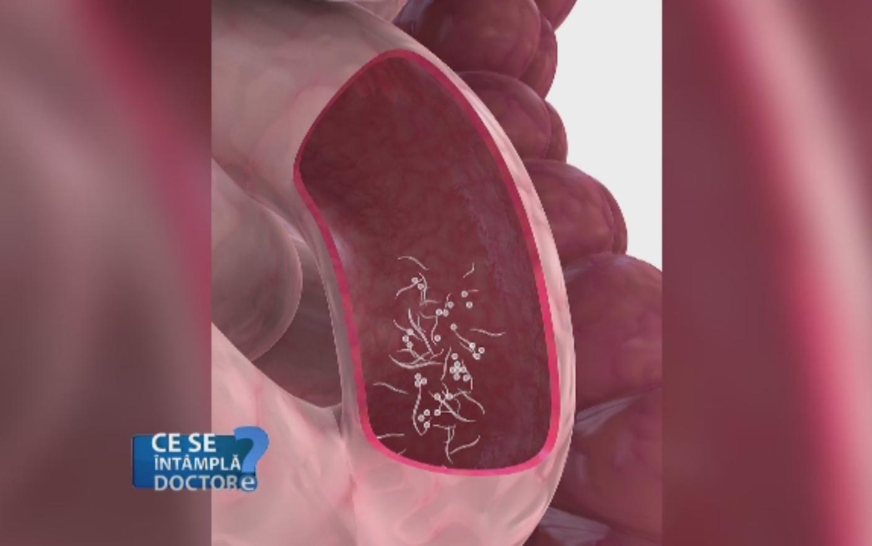 hpv removal procedure cancer in gat durata de viata