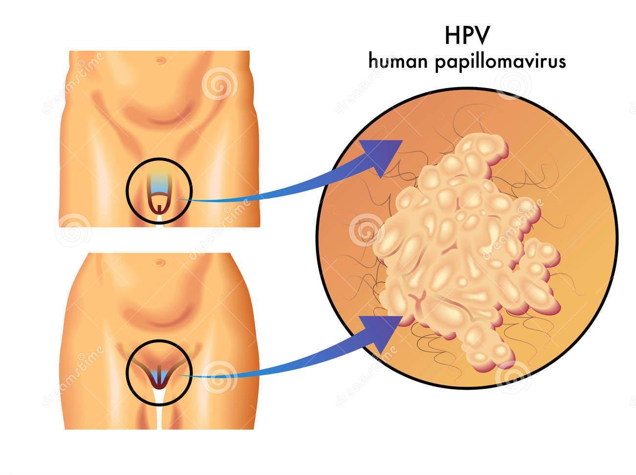 trasmissione papilloma virus sintomi