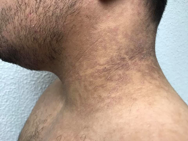 tratamiento papilomatosis reticulada y confluente